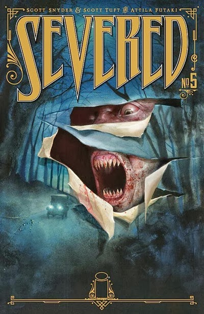 severed_5_cover.jpeg