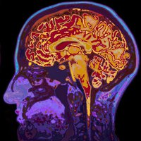 Az immunrendszer sokkolóan új szerepét fedezték fel: kontrollálja a társas érintkezést
