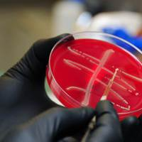 Szuperbaktériummal fertőzöttek a riói strandok
