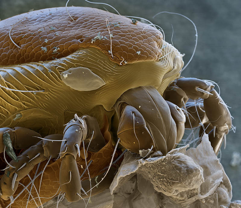 water-mite-mircoscope-photography-nicole-ottawa.jpg