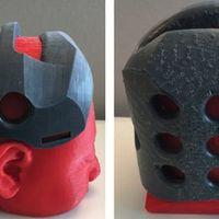 Nyomtatott védősisakkal elodázhatók koponyaműtétek