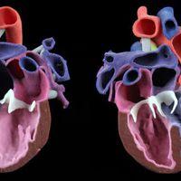 Igény szerinti nyomtatott orvosi szolgáltatást nyújt a 3D Systems
