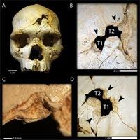 430 ezer éves gyilkosságra derített fényt egy 3D szoftver