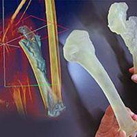 3D nyomtatás sas-sebészethez