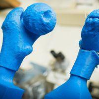 Műtétenként 2700 dollár spórolható meg 3D nyomtatással
