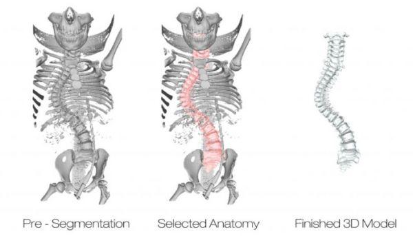 3dnyomtatas_anatomia.jpg