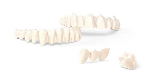 3dnyomtatas_dental0.jpg