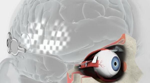 bionics2.jpg