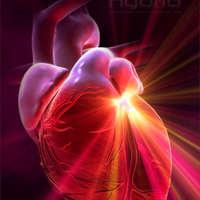Lesz-e 10 éven belül infarktusom?- on-line rizikóbecslés