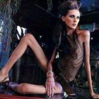 Étkezési rendellenesség - kóros soványság és a divat