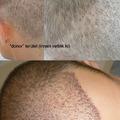 A hajátültetést követő 5. napon