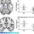 Mi történik az agyunkban, ha nem mozgunk?