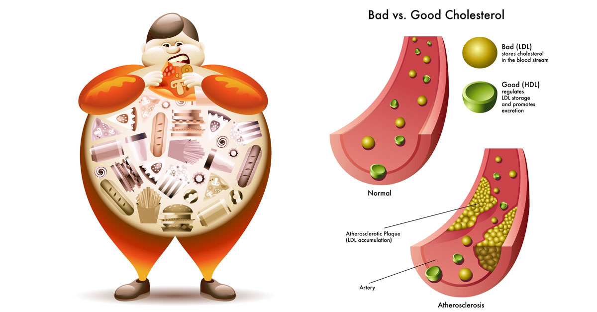 bad-vs-good-cholesterol.jpg