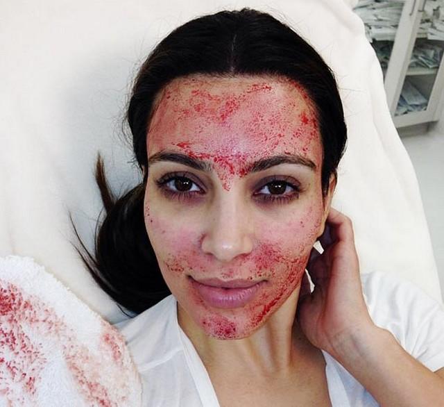 Kim Kardashian véres arca.jpg