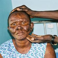 Egy misztikus betegség: A lepra.