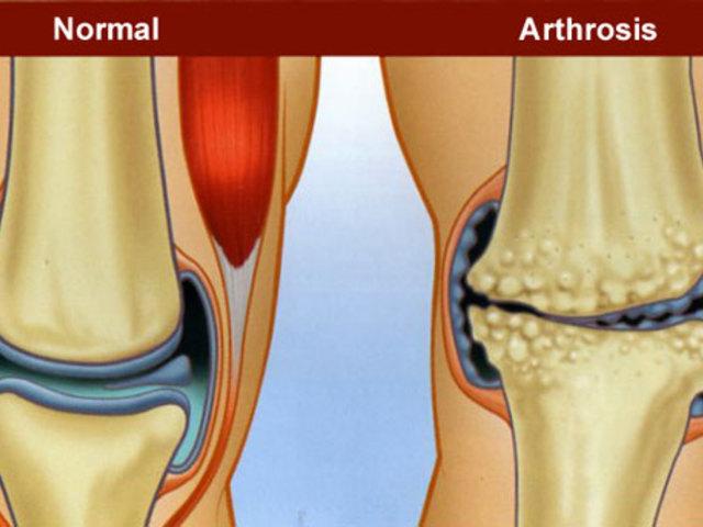 a legjobb gyógyszerek az artrózis kezelésére)