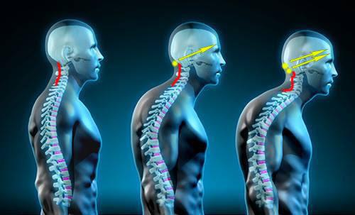 forward-head-posture-fix-manual3.jpg