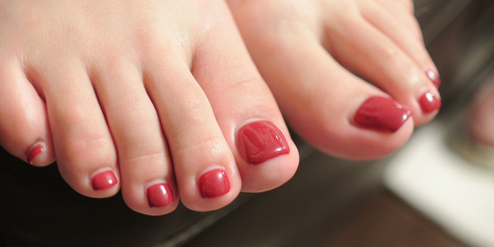 landscape-1445728204-g-fungal-nail-infection-463752679.jpg