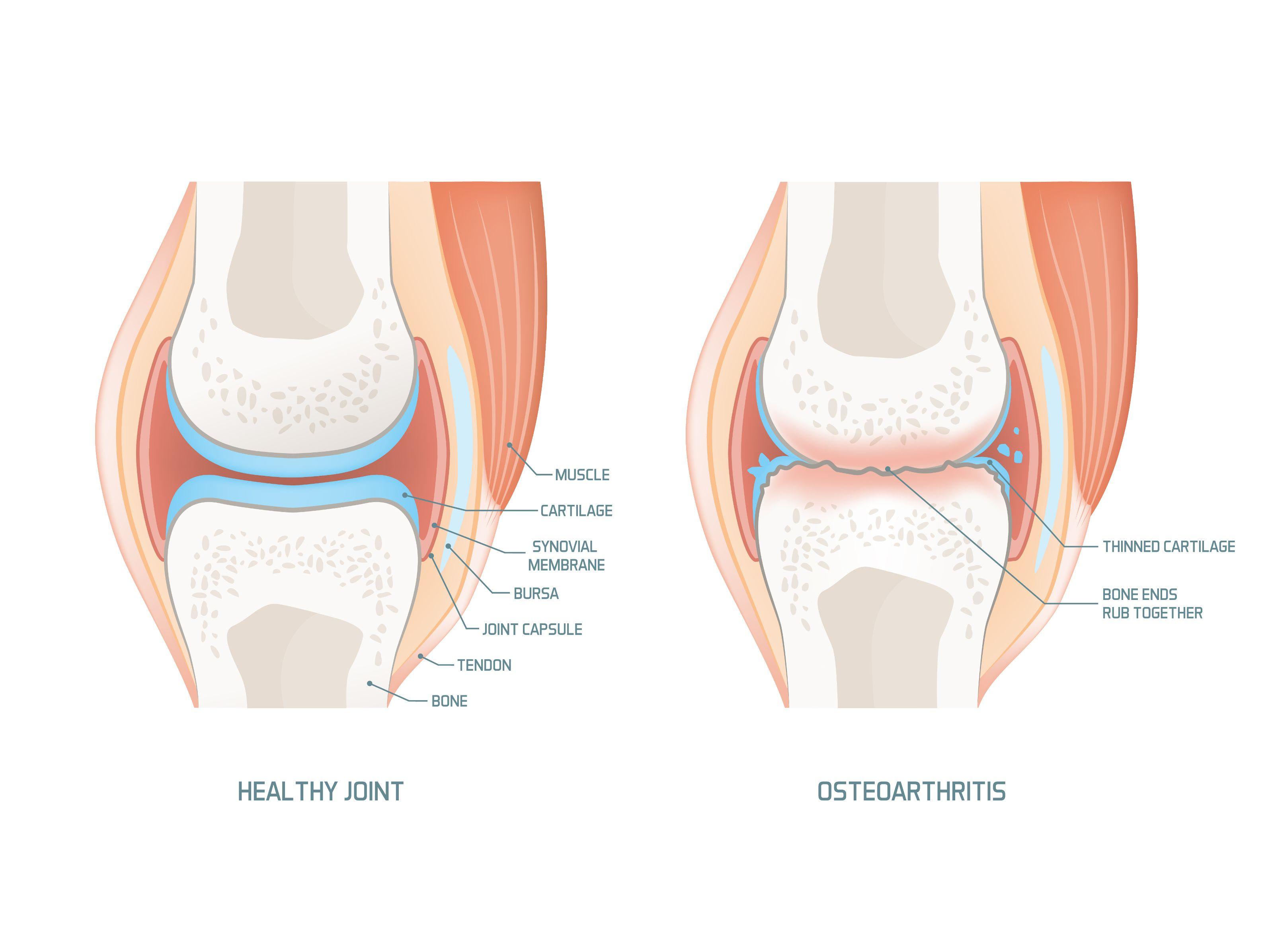 nyaki osteochondroz melegítő kenőcsök a térd külső meniszkuszának károsodásának tünetei