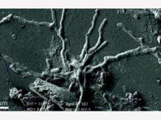 Épen maradt neuronok herculaneumi áldozat megüvegesedett agyában
