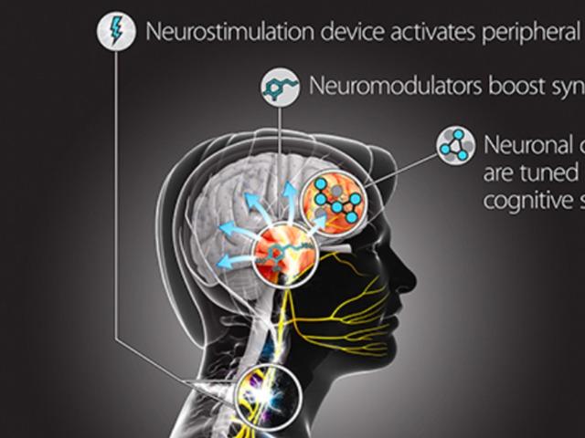 Gyorsított nyelvtanulás elektromos stimulációval