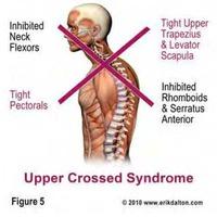 Felső Keresztezett Syndroma (UCS)