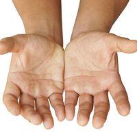 Neked is lehet harmadik hüvelykujjad