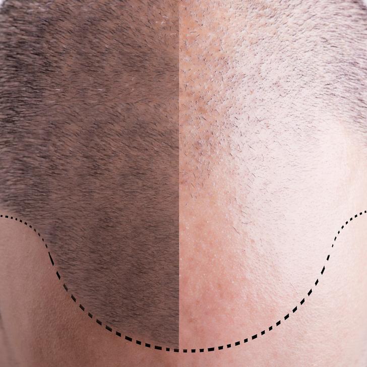 Mire számítsunk műtét után? – Az első hét