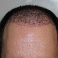 Hajbeültetés után 1 hónappal