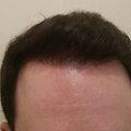 A hajbeültetés végeredménye