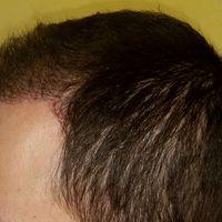 Hajbeültetés után 5 hónappal