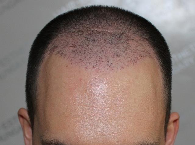 Hajbeültetés után 2 hónappal