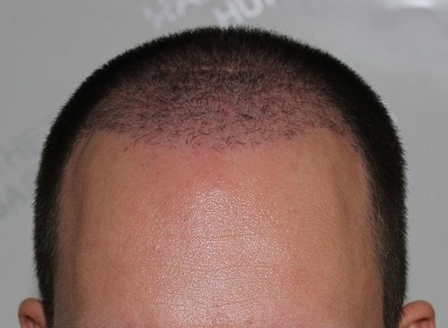Hajbeültetés után 3 hónappal