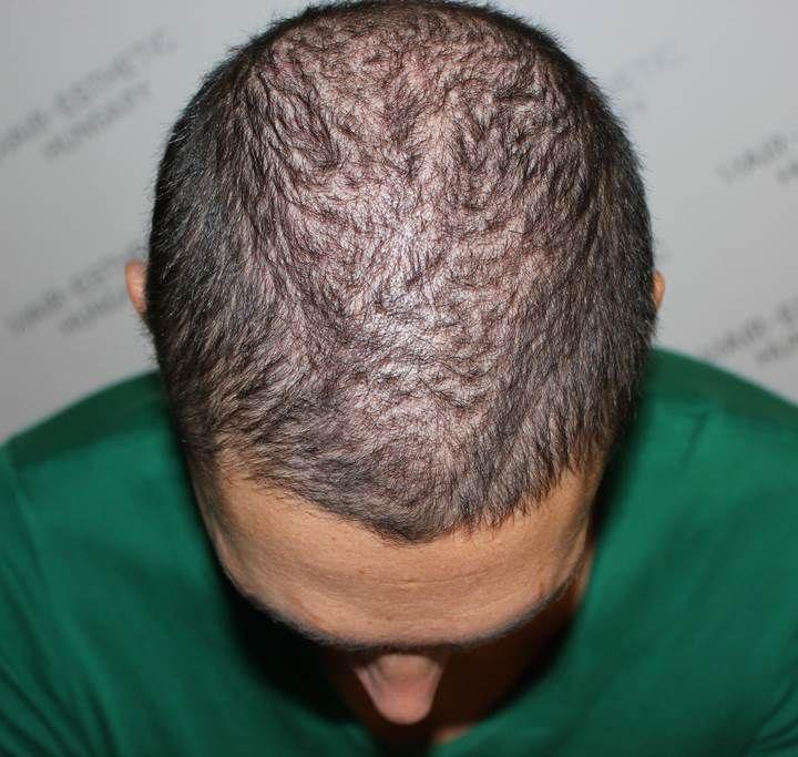 Varga Dániel hajbeültetés kontroll - 1 hónap