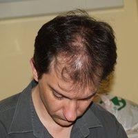 Keresem a megoldást a ritkuló hajamra