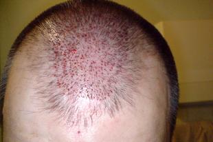 Hajátültetés - A műtét
