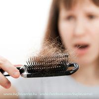 A hajhullásról :
