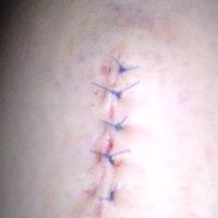 műtét #2.