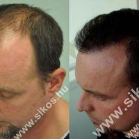 Gábor sikeres hajbeültetése megváltoztatta az életét! Succesful Hair Transplant changed our patient's life!