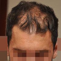 Fiatalembereknek nem kell rögtön hajbeültetésen gondolkodni, ha hajhullásuk elkezdődik.