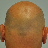 Kinek érdemes hajbeültetés végeztetni és kinek nem?  Hair transplant for who and who not?