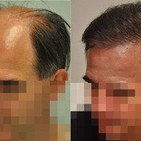 Hogyan értük el, hogy a kopasz férfi teljes hajas megjelenést kapjon?!