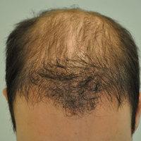 Mitől minőségi a hajbeültetés?