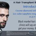 """""""Black Market"""" hajbeültetés.  A hajbeültetés sötét oldala"""