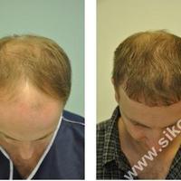 Wayne Rooney hajbeültetésen járt