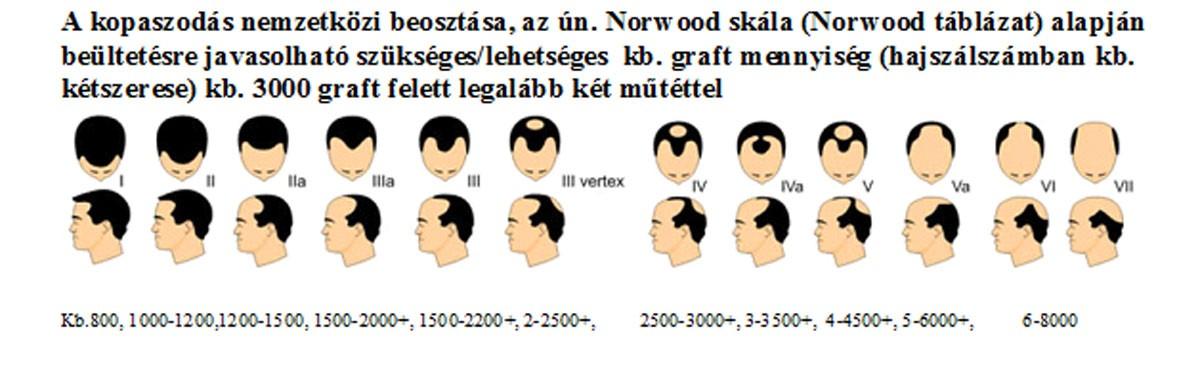 norwood_tablazat_graft_javaslattal.jpg