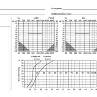 Mire jó ez a furcsa koordinátarendszer? Ismerjük meg az audiogramot!