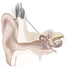220px-cochlear_implant.jpg