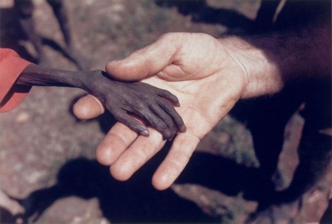cool-powerful-photos-hand-hunger-669x452.jpg