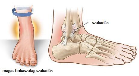 Külső bokaszalag szakadás